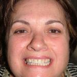 Gina Big Bay Dental Barrie