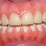Agnes Big Bay Dental Barrie