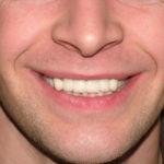 Alex Big Bay Dental Barrie