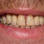 Darryl Big Bay Dental Barrie