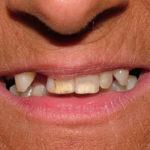 Diane Big Bay Dental Barrie