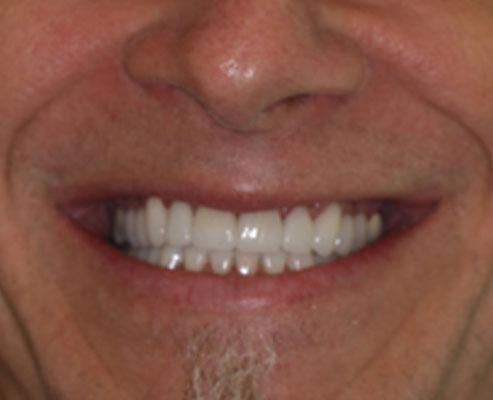 Fred Big Bay Dental Barrie