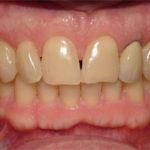 Jason Big Bay Dental Barrie