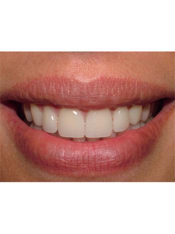 Jennifer Big Bay Dental Barrie