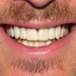 Max Big Bay Dental Barrie