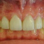 Milos Big Bay Dental Barrie