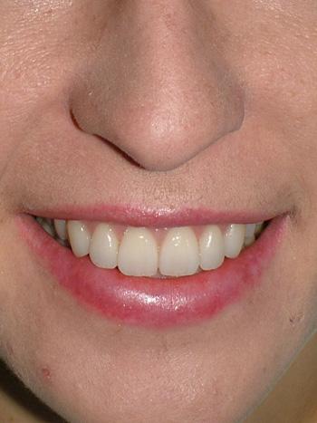 Natalia Big Bay Dental Barrie