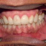 Romeo Big Bay Dental Barrie