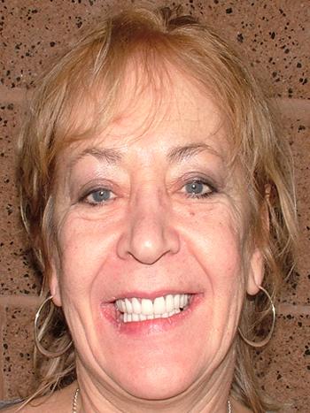 Susan Big Bay Dental Barrie