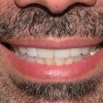 Tony Big Bay Dental Barrie
